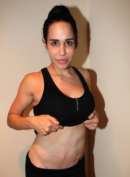 Nadya Suleman Reveals Stomach Scars and Stretch Marks From Pregnancy