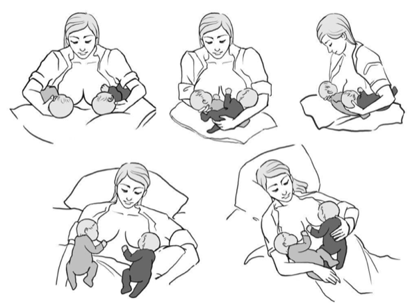 How to Succeed at Breastfeeding in the First Three Months With Twins